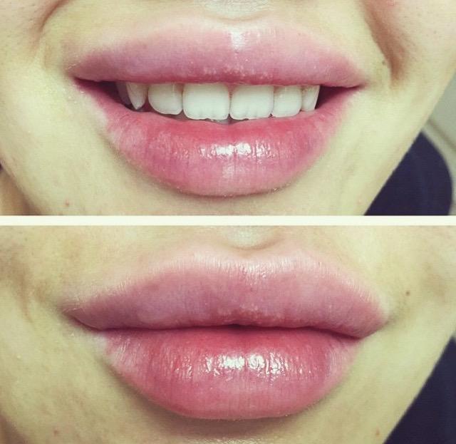 Увеличение губ филлерами ювидерм